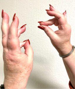 stress vingeroefeningen